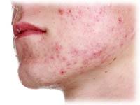 hudsjukdomar i ansiktet